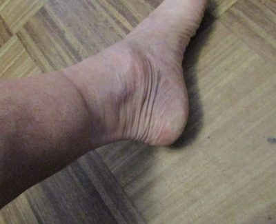 Before wearing Sockwell Therapeutic compression socks