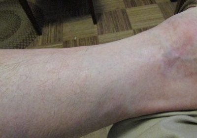 After wearing Sockwell Therapeutic compression socks